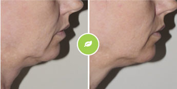 Dermal pomlajevanje kože Elos